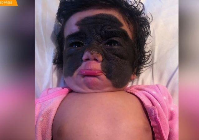 """Dívku s """"maskou Batmana"""" budou léčit v Rusku"""