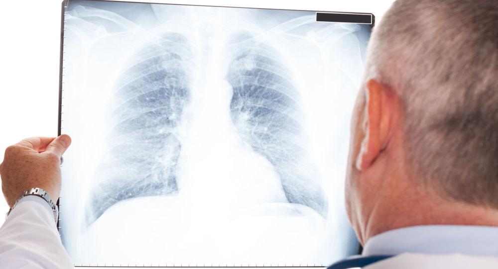Lékař s rentgenovým snímkem plic