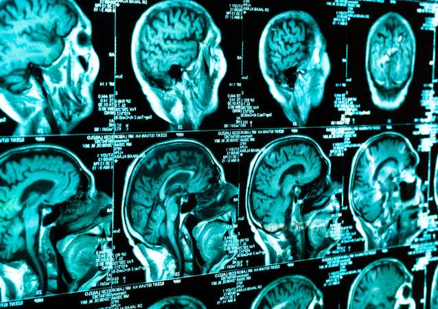 Lidský mozek. Skénování