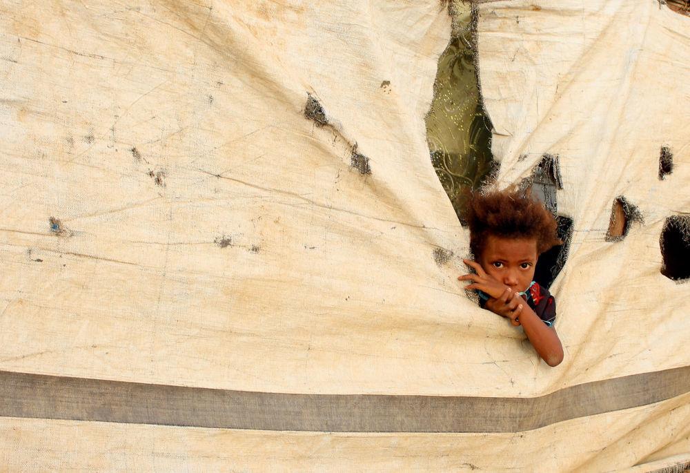 Dítě v uprchlickém táboře v jemenské provincii Abs.