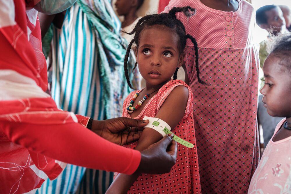 Čtyřletá běženka v Etiopii na lékařské kontrole.