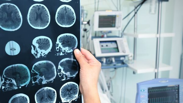 Снимок томограммы мозга - Sputnik Česká republika