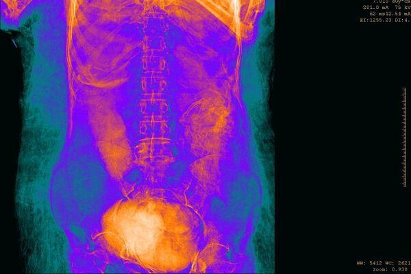 Polští vědci objevili dva tisíc let starou mumii těhotné ženy - Sputnik Česká republika