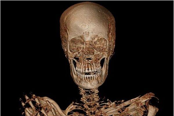 Polští vědci objevili dva tisíc let starou mumii těhotné ženy. - Sputnik Česká republika