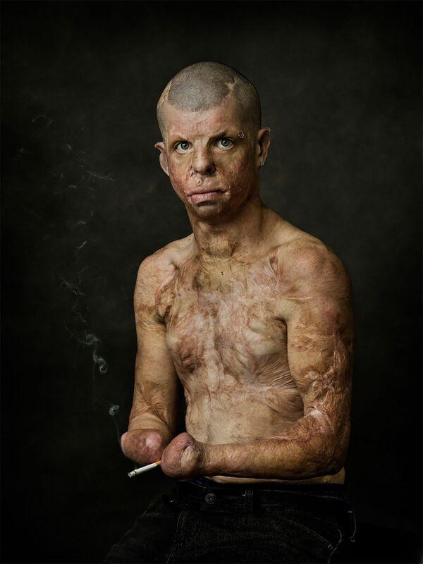 """Fotografie Steva Wise """"Robbie"""". Robbie se popálil při nehodě ve své ložnici, když mu byly 4 roky. Kvůli svému vzhledu to neměl lehké, ale stále tvrdě pracuje a snaží se žít co nejnormálnější život. - Sputnik Česká republika"""