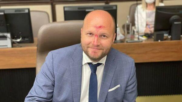 Министр обороны Словакии Ярослав Надь с травмированным лицом - Sputnik Česká republika