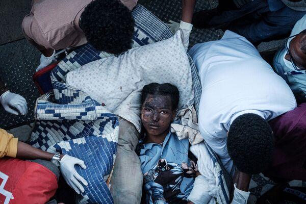 Zraněný obyvatel vesnice Togogi v Etiopii po náletu - Sputnik Česká republika