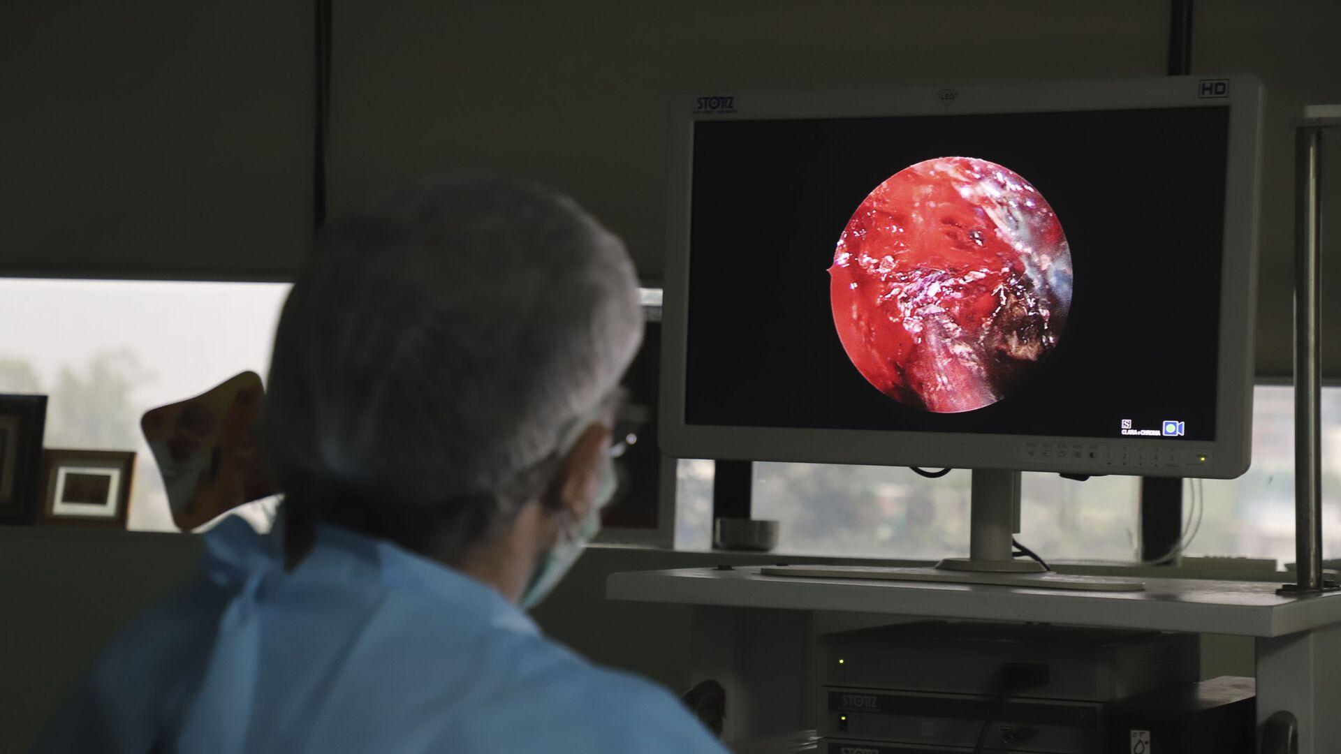 Indický lékař provádí pokročilou funkční endoskopickou operaci nosních dutin u osoby trpící muckormykózou v nemocnici na okraji Nového Dillí v Indii - Sputnik Česká republika, 1920, 01.07.2021