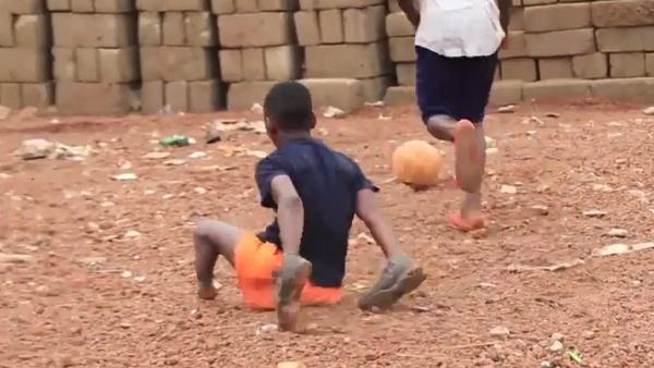 Video: Chlapec hraje fotbal i se vrozeným onemocněním. Jednu nohu měl otočenou a druhou rozdělenou na dvě - Sputnik Česká republika