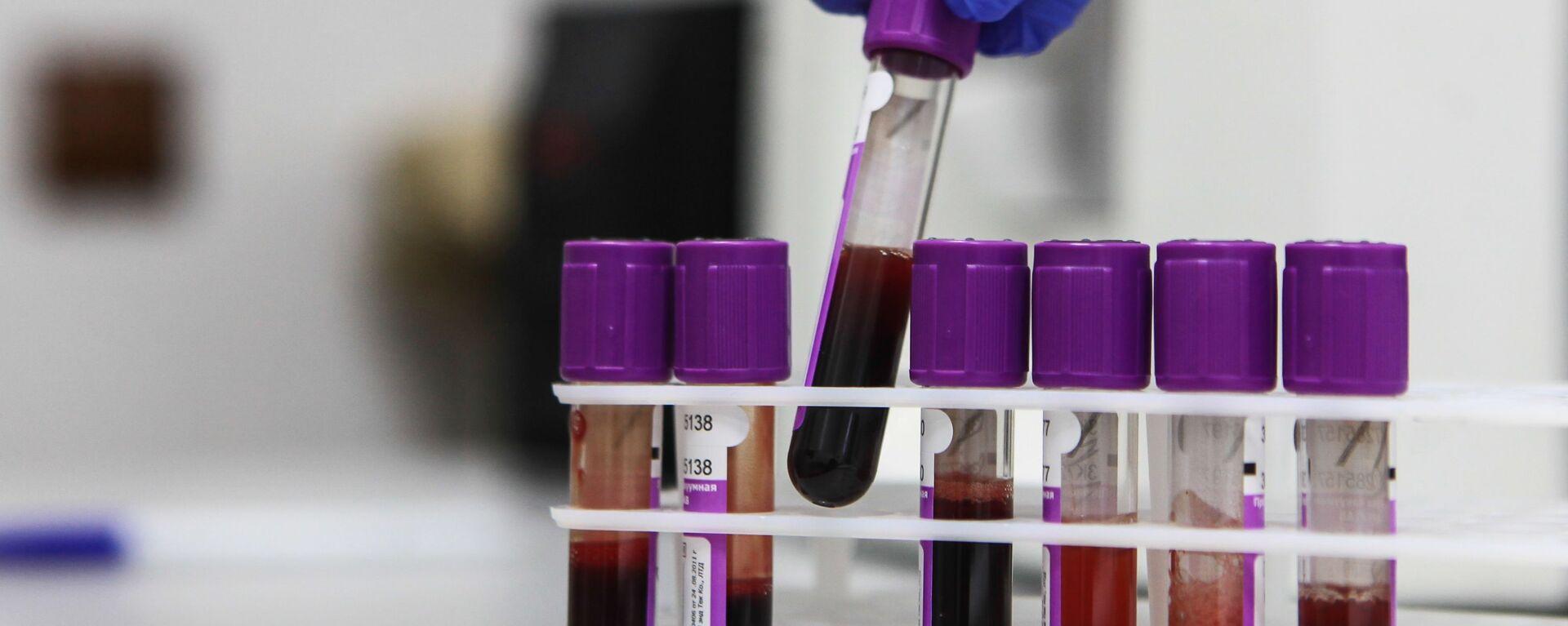 Zkumavky se vzorky krve pro výzkum - Sputnik Česká republika, 1920, 10.06.2021