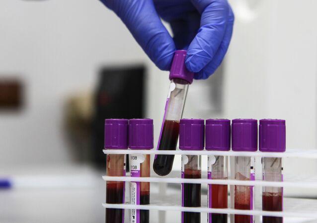 Zkumavky se vzorky krve pro výzkum