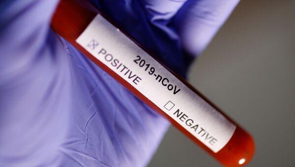 Test na koronavirus - Sputnik Česká republika