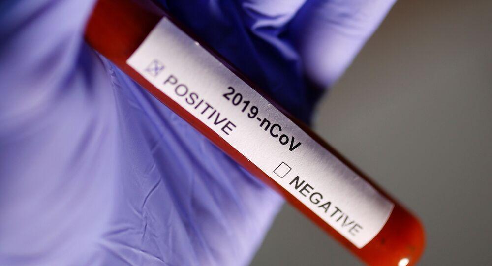 Test na koronavirus