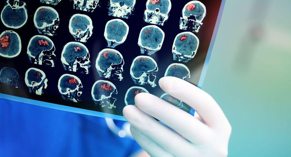 Snímek magnetické rezonance mozku pacienta