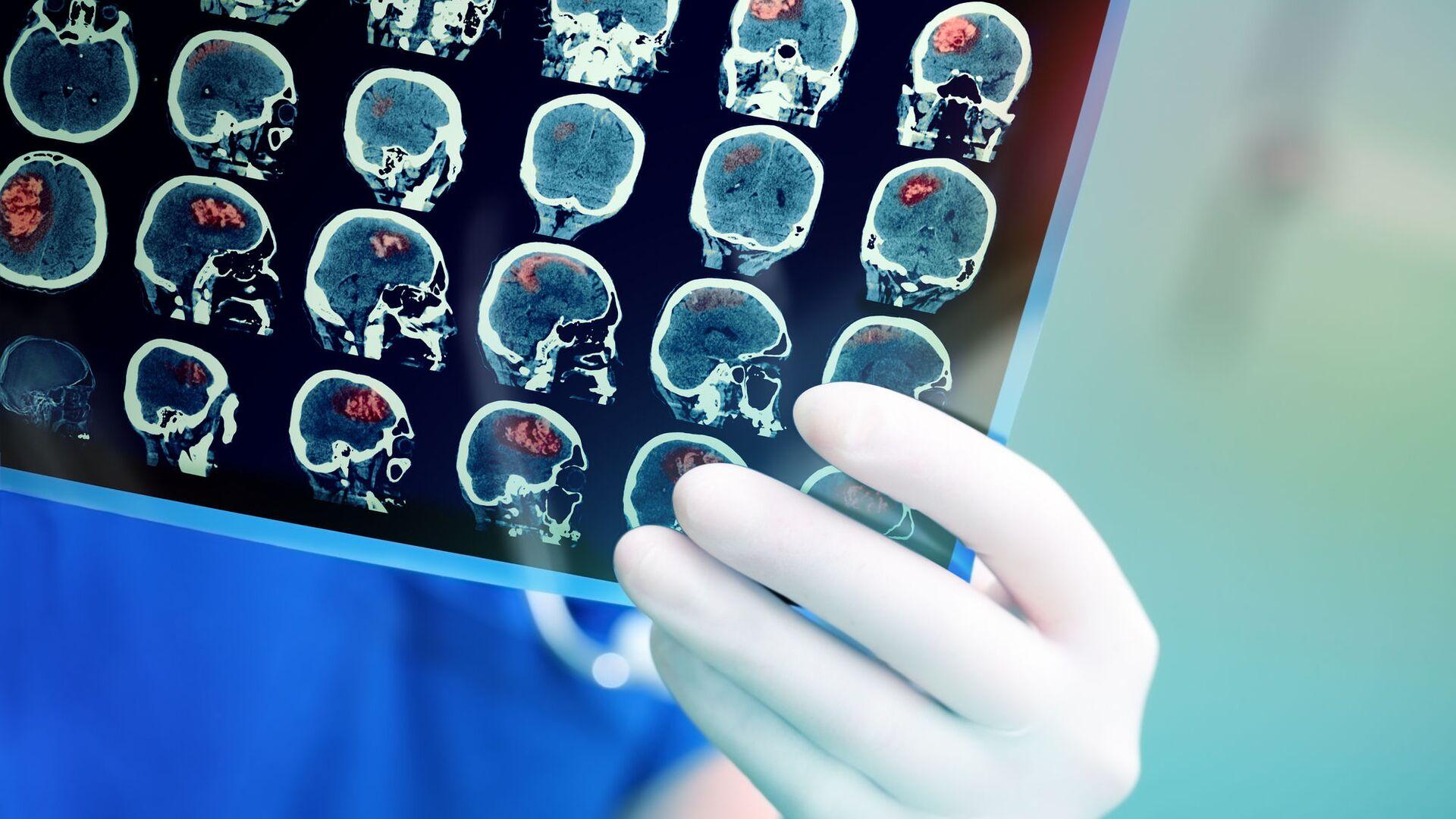 Snímek magnetické rezonance mozku pacienta - Sputnik Česká republika, 1920, 21.04.2021