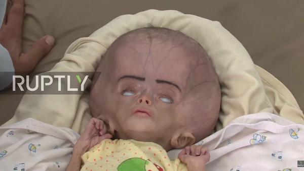 Děti s deformacemi v Jemenu - Sputnik Česká republika