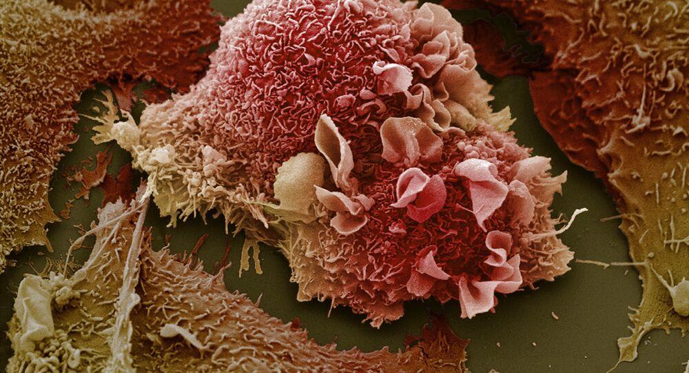 Plíce pacienta s rakovinou