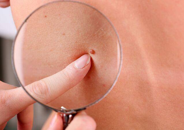 Dermatolog zkoumá znaménko